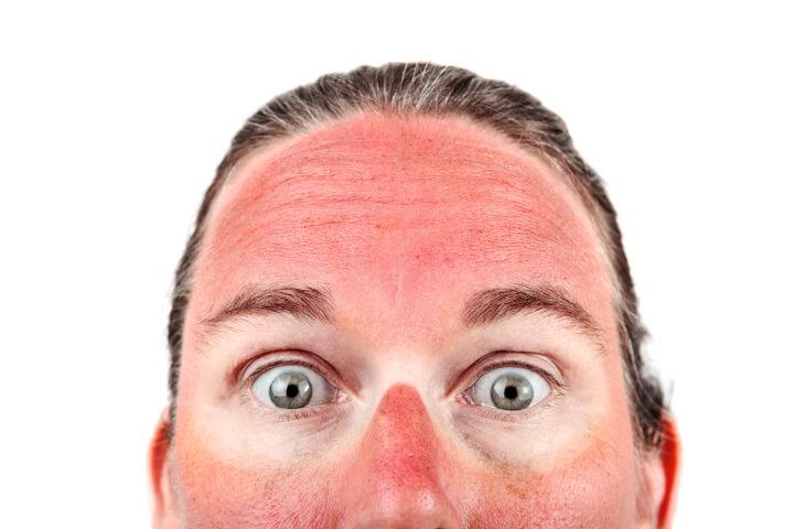 意外に焼けるゲレンデ 完全無欠の紫外線対策で行こう!のイメージ